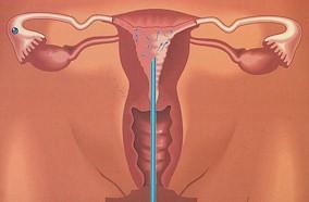 Inseminazione intrauterina (IUI)