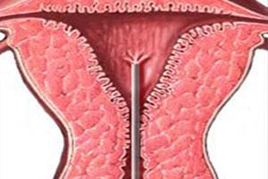Scratching Endometriale
