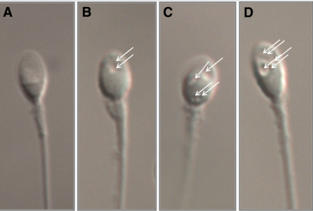 sperm vacuoles