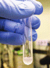 Analisi del liquido Seminale