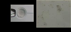 Selezione degli spermatozoi nei programmi ICSI
